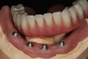 Dentures Tx Implant Supported Dentures Longview Tx Dr Kovacs