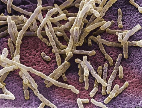 Stool Transplant Clostridium Difficile by Fecal Transplants How Well Do They Work Huffpost