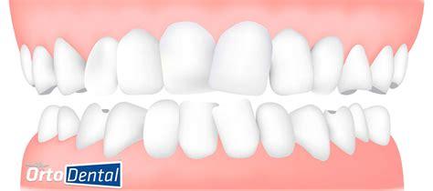 la dinasta del diente despu 233 s de la ortodoncia brackets 191 los dientes regresan a su posici 243 n desalineada