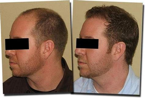 prescreened hair transplant physicians hair loss leading hair restoration physicians