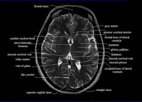 axial section 25 best ideas about brain anatomy on pinterest human