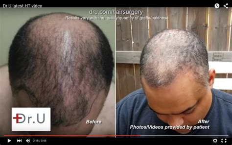 Transplant Hair From Chest To Head | chest hair to head transplant