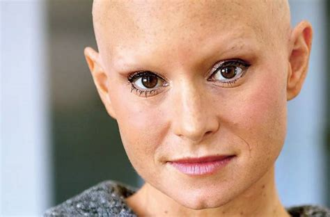 completely bald women alopecia didn t stop this actress from embracing her