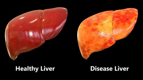 liver disease is coffee for you 11 health benefits