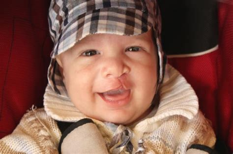 s new smile a baby with cleft lip and palate books scientists find genetic mutation that causes cleft lip and
