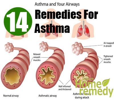 14 home remedies for asthma treatments cure