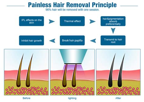 tattoo removal southton arizona laser hair removal laws diy laser hair removal
