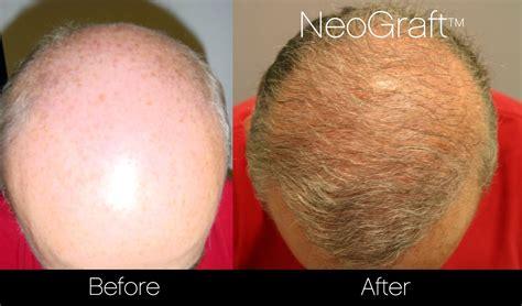 hair transplant problems new scar less neograft hair restoration procedure for men