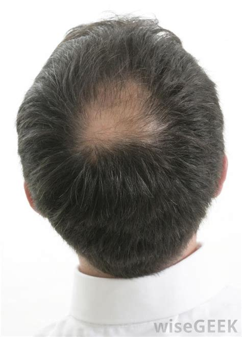 hair growth bald patch download free softkeyhire21