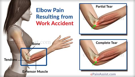elbow pain benching image gallery inner elbow pain