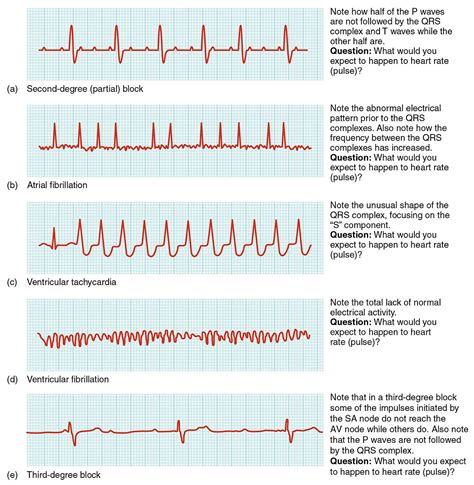 slow life history pattern definition cardiac arrhythmia simple english wikipedia the free
