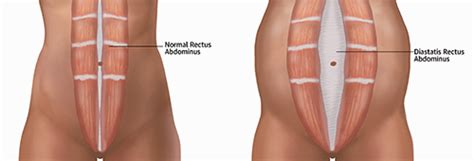 pain during bowel movement after c section diastasis rectus abdominis moveforward