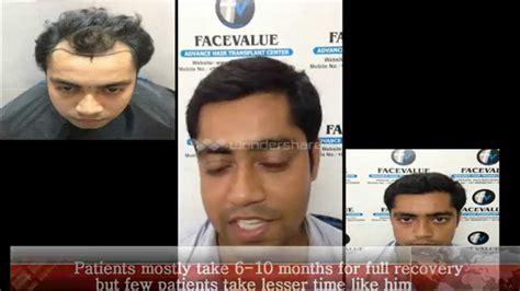 hair transplant india delhi mumbai youtube complete fue india mumbai step by step youtube