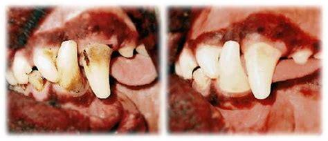 how to clean tartar s teeth cleaning teeth