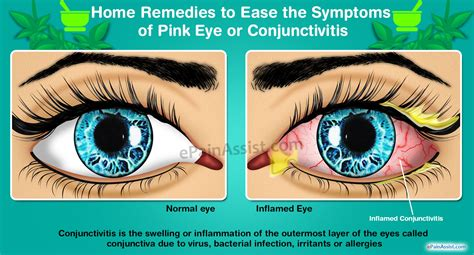 symptoms of pink eye home remedies to ease the symptoms of pink eye or conjunctivitis