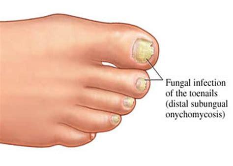 infected toenail bed toenail fungus