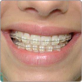 Pasta Gigi Untuk Behel fadzilla musanti perawatan gigi untuk si behel
