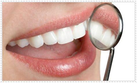 Pemutihan Gigi Bleaching teeth whitening oki tristanty