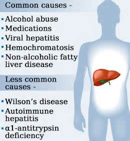 what causes a s liver enzymes to be elevated high liver enzymes health