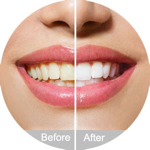 amazoncom iwotou teeth whitening charcoal powder natural
