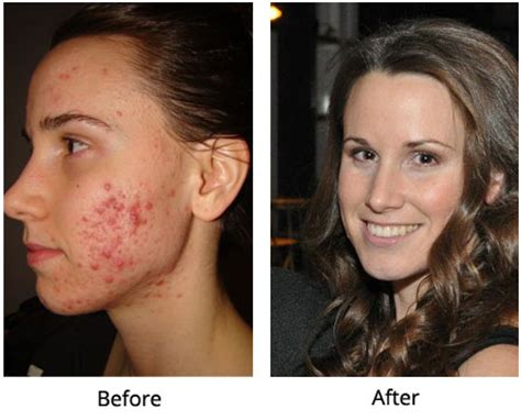 Should I Detox Before Going Vegan by 3 Foods You Must Avoid For Healthy Skin And How I Healed