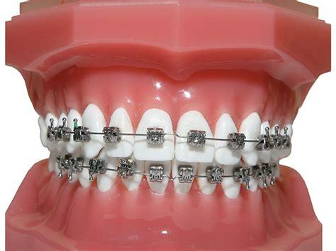 different color braces metal braces