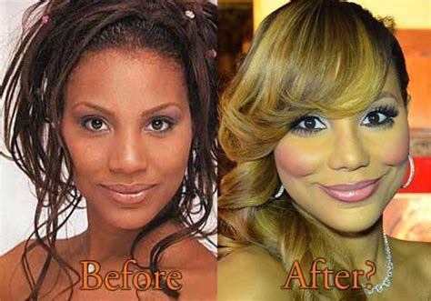 tamar braxton nose job before after tamar braxton plastic surgery topcelebritysurgery