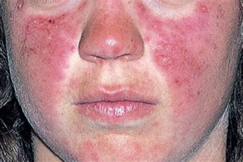 sle of use pin lupus skin rash on
