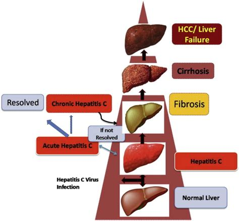 liver failure stages stages of liver damage this figure shows how normal healthy liver figure 1 of 2