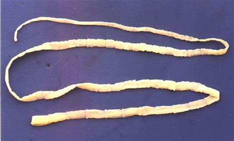 tapeworms in tapeworm beef causes symptoms treatment tapeworm beef