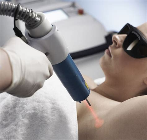 alexandrite laser tattoo removal underarm laser hair removal at image by laser brisbane