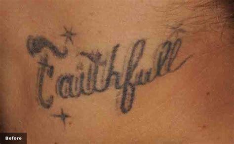 tattoo removal in kansas enlighten 174 cutera