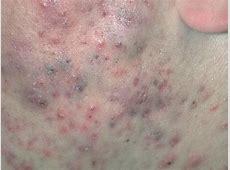 Acne Pictures - Index Lupus Vulgaris Face