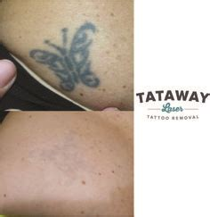 tattoo removal akron ohio do you or anyone you a bad check out the