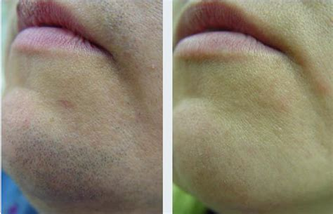 s laser hair removal laser hair removal