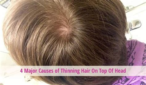 hairstyles to cover thinning hair on scalp hairstyles for thinning hair on top of head hairstyles for