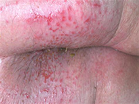 dermite du siege dermites du si 232 ge groupe plaies et cicatrisation 224
