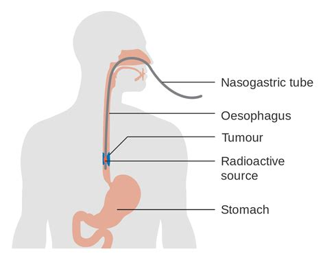 diagram of esophagus file diagram showing radiotherapy for cancer of