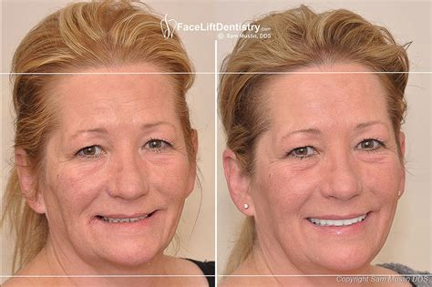 Next Facelift For Your Teeth 2 by Problems After Neuromuscular Reconstruction