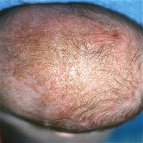 Crib Cap by Baby Cradle Cap Pictures Symptoms Causes And Treatments