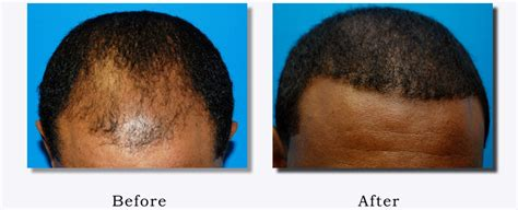 hair transplant in amerca african american hair transplant before after pictures nyc