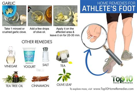 home remedies for athlete s foot top 10 home remedies