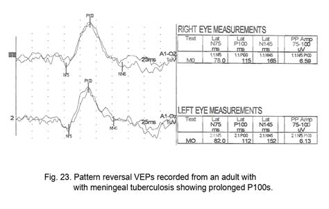 pattern reversal vep definition webvision the electroretinogram clinical applications