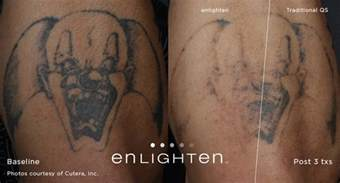 plastic surgery tattoo removal enlighten laser removal boise rodgers center for