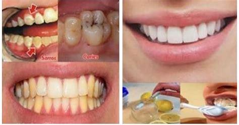 Umum Membersihkan Karang Gigi luar biasa cara ini dapat menghilangkan karies karang dan