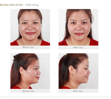 goodwind cm 1 held acne treatment skin care