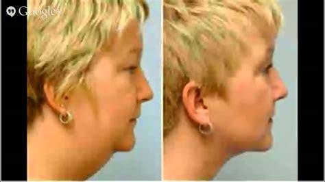 double chin tuck sew doublechinliposuction informedsurgery com