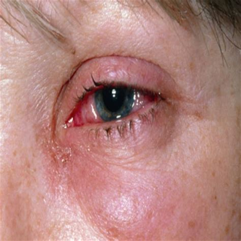 eye irritation 6 simple and best ways to cure eye irritation with herbs search herbal home remedy