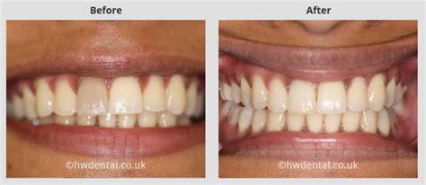 teeth whitening north west london harrow weald dental