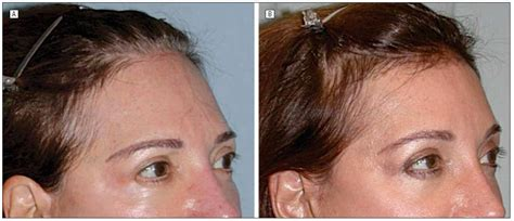 women hairlines hair procedures for women with a high forehead regrow